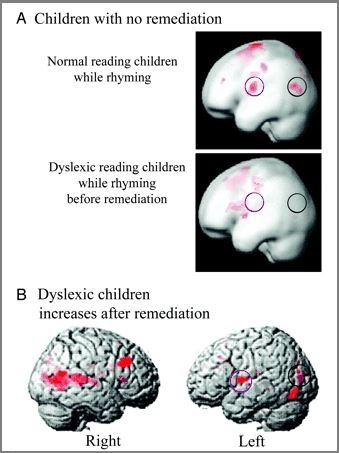 fMRI dyslexia2